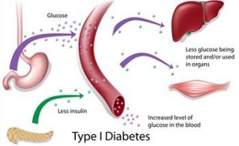 feline diabetes type 1